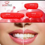 Zahnaufhellung smileffect